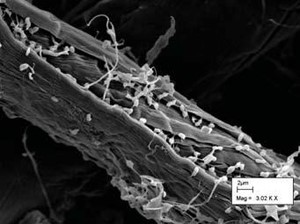 microscopic image of bacteria breaking down plant structural carbohydrates
