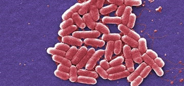 microscopic colorized image of bacteria