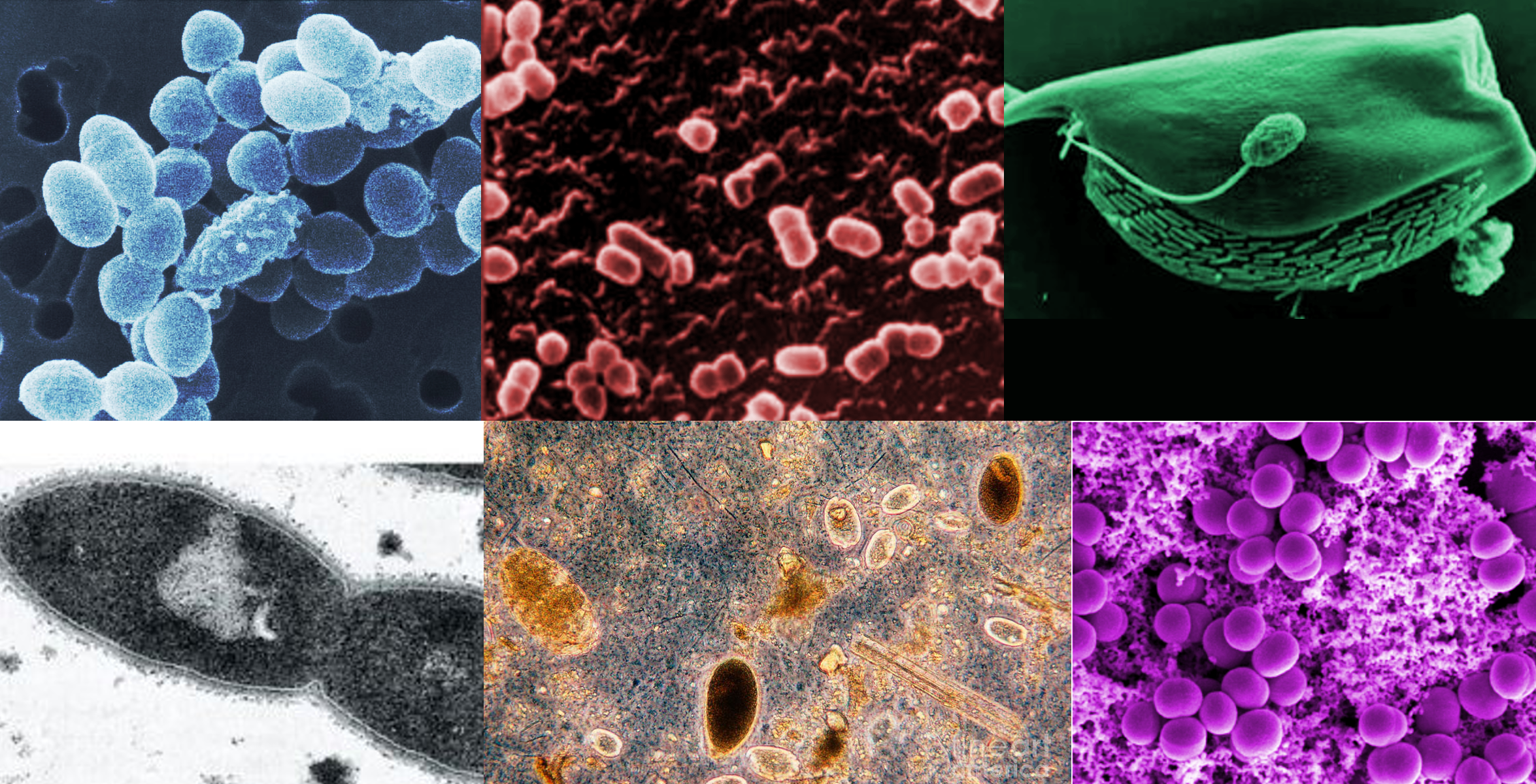 six microscopic images of various microbes
