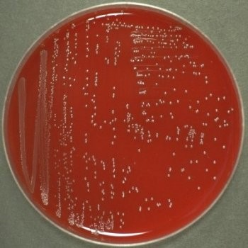 petri dish with bacterial colonies