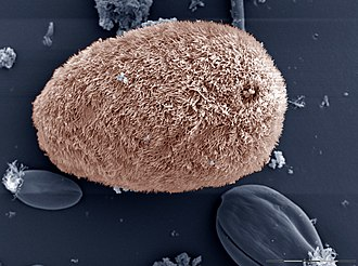 Microscopic image of Isotricha