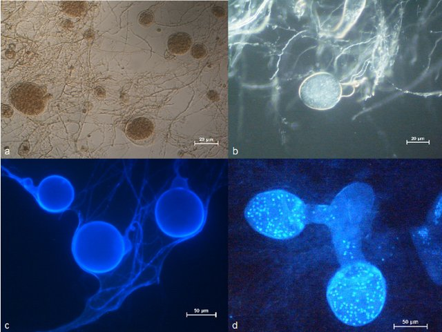 neocallimastix frontalis under microscope